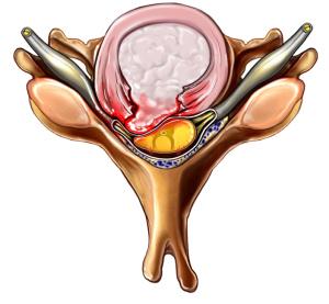 disc herniation representation